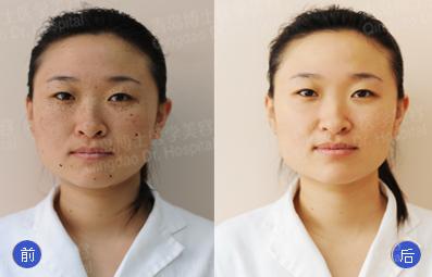青岛博士医学美容医院的医生去了解一下,做一次激光祛斑的费用.