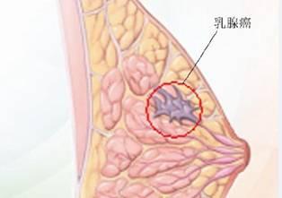青岛 乳腺癌长什么样