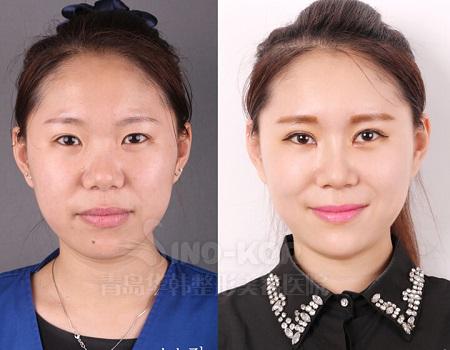 人能做欧式双眼皮