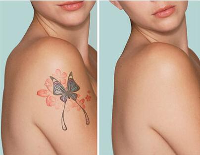 健康频道 微创整形 皮肤美容 祛色素痣纹身 > 正文     青岛华韩整形图片