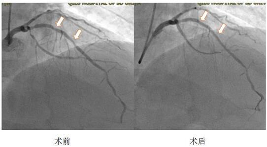 山东大学齐鲁医院(青岛)心内科成功开展药物涂层球囊扩张成形术治疗