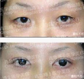 即墨压双眼皮一般需要多少钱